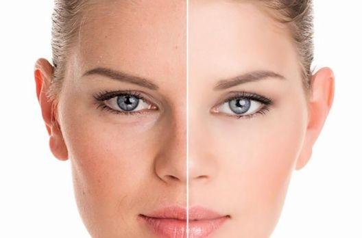 Bichectomia: o segredo para afinar o rosto
