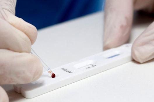 Covid-19: pesquisa testará presença de anticorpos em 211 mil pessoas